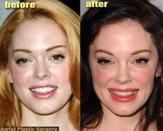 Rose McGowan, once a naturally beautiful lady, has aged herself at least 15 years by having botched surgery!  Proof again, don't play offense against aging! It's such a shame because I always thought that she was one of the loveliest stars in the 90's.