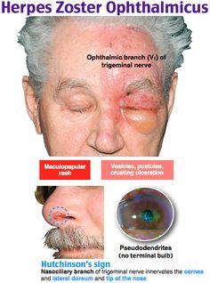 Herpes Zoster Ophthalmicus Nurse Brain Sheet, Family Nurse Practitioner, Nursing Mnemonics, Primary Care Physician, Eyes Problems, Emergency Medicine, Nursing Notes, Internal Medicine, Nclex