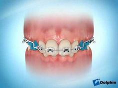 Orthodontic 2 by 4 appliance is placed onto the first molars and on all 4 incisors of the arch. It is used to treat orthodontic conditions successfully. Dental Braces, Teeth Braces, Black Braces, Dental Videos, Dentist Logo, Orthodontic Appliances, Braces Colors, Orthodontics, Dental Health