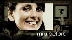 Mia's Story: Six Month Smiles - Straight Teeth. Less Time. Clear Braces., via YouTube.