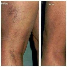 Want to get rid of those horrible looking spider veins? Guess what? There is hope! And It Works can help! Check out what Defining Gel did for these deep purple veins! Boom! www.sanjoseskinnywraps.com #Veins #SpiderVeins #ItWorks #DefiningGel #ICanHelp #SanJose #GuessWhat #RealPeople #RealResults #Results #LoveIt #BeConfident #BeSexy #GetSexy #Boom