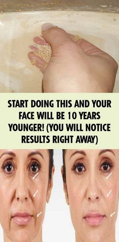 Start Doing This Your Face Will Be 10 Years Younger. You Will Notice Results Right Away Start with it and your face will be 10 years younger! (You will notice the results immediately) – YOUR HEALTH Health Tips For Women, Health Advice, Health And Beauty, Health And Wellness, Health Fitness, Fitness Tips, Wellness Tips, Homemade Facial Mask, Homemade Facials