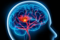 'July effect' does not impact stroke outcomes, according to new study  Patients with strokes caused by blood clots -known as acute ischemic strokes- who were admitted in July had similar outcomes compared to patients admitted any other month, according to a new study. The findings challenge concerns about the possibility of lower quality of care and the potential risk of poorer outcomes in teaching hospitals when new medical residents start each July - sometimes called the 'July effect.'