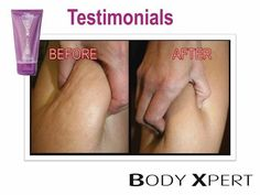 Annique Cellulite Cream ! The best cellulite product on the market !
