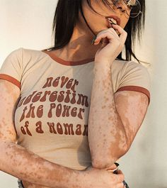 What is Vitiligo? Vitiligo is a skin disorder that causes patches of white skin to appear on different parts of the body. What Is Vitiligo, Medical Textbooks, Vitiligo Treatment, Skin Grafting, Chronic Stress, Learn To Love, Autoimmune Disease, Medical Conditions, Natural Cures