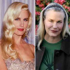 Daryl Hannah Before Plastic Surgery Always interesting what you can find when you type in cosmetic surgery and other related terms Daryl Hannah, Celebrities Before And After, Celebrities Then And Now, Worst Celebrities, Celebs, Plastic Surgery Pictures, Bad Plastic Surgeries, Celebrity Plastic Surgery, No Photoshop