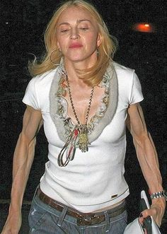 # 9 Madonna  Zero percent body fat is a nice idea in theory. But in reality it looks really frightening. Without Hollywood makeup and lighting, it's hard to believe that Madonna is only 54.