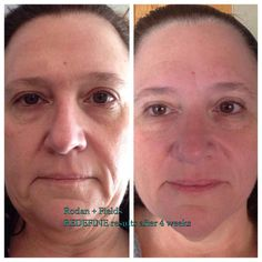 Love this! After only 4 weeks Toni is well on her way to looking years younger. #skinrevolution #iloveRF #agingredefined