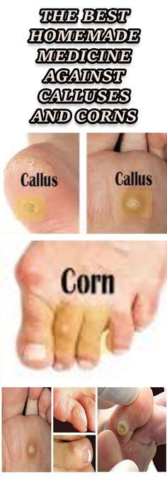 THE BEST HOMEMADE MEDICINE AGAINST CALLUSES AND CORNS
