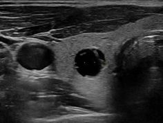 WK 1 THYROID Transverse