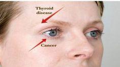 Vos yeux sont des Miroirs pour votre santé : 8 problèmes que vos yeux peuvent révéler au sujet de l'état de votre santé …