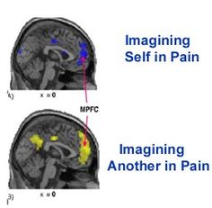 1000 images about psychology on pinterest coaching for Mirror neurons psychology definition