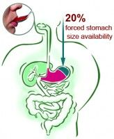 she seems to be much svelter #gastric_bypass #gastric_sleeve #Roca_Labs