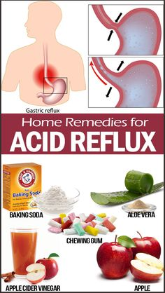30 Home Remedies for Acid Reflux