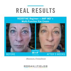 We are all aging all the time, but what that looks like is up to you. REDEFINE™ is a comprehensive Multi-Med® Therapy skincare solution that layers potent cosmetic ingredients including peptides and Hyaluronic Acid. With regular use, REDEFINE helps defend against and reduce the visible signs of aging for noticeably firmer, smoother, flawless-looking skin.  http://corrief.myrandf.com   #rodanandfields #facewash #skincare #skincareproducts #beautyroutine #antiaging #wrinkles #finelines…