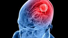 RGCIRC offers best neuro oncology treatment in Delhi NCR, India with low risk. Visit here & find India's best team of neurosurgeon, neurologist, radiation oncologist. Tumor Cerebral, Brain Tumor, Brain Injury, Zika Virus, Brain Health, Healthy Brain, Healthy Foods, Cancer Treatment, Neuroscience