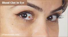 Blood Clot in Eye Eye Medicine, Eye Pain, Home Remedies, Blood, Eyes, Face, Health, Health Care, The Face