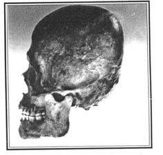 """A rare skull type called """"Dinaric"""" has been found in Jerusalem the Brtish Isles and the Ohio Valley. The Dinaric were gigantic people whose large skeletons have been found within burial mounds across the extent of Europe. They were one of the contingents of the Beaker People who are best known for their construction of Stonehenge."""