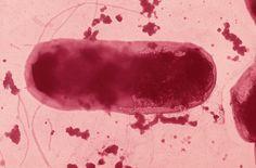 Maladie de Crohn : des chercheurs identifient un gène responsable