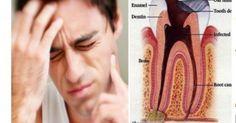 Rewelacyjny, naturalny sposób na bolące zęby.