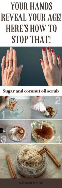 Your Hands Reveal Your Age! Here's How To Stop That!