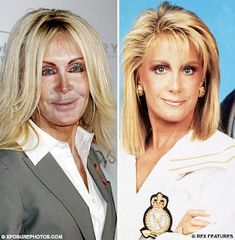 Check out Joan Van Ark from Celebrity Plastic Surgery Fails