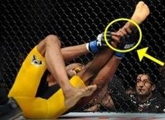 "Anderson Silva, also known as ""The Spider,"" is a Brazilian MMA fighter and former UFC Middleweight Champion. According to the American Academy of Orthopaedic Surgeons, a tibia fracture is one of the most common injuries. Typically, this type of injury occurs just below the knee, or, as in Anderson Silva's case, just above the ankle."