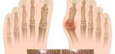 Kromě samotných kloubů je často postižena i přilehlá pokožka, která může být zarudlá a bolavá. Pokud nosíte těsné nebo úzké boty, ty mohou haluxy vyvolat, případně jejich stav ještě zhoršit. Další příčinou tohoto onemocnění bývají vrozené strukturální vady kostí, nadměrná zátěž kloubů nebo zdravotní komplikace jakou je například artritida. Menší výběžky mohou vzniknout i na … Detox, Health Fitness, Fitness, Health And Fitness