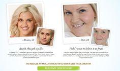Auvela Skincare And Serum Reviews - Read Before You Buy!! =>> http://supplementplatform.com/auvela/
