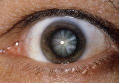 Do Antioxidants Prevent Cataracts?