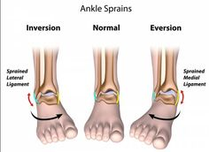 Exercises For Sprained Ankle Ligaments: A full Guide of the stretching exercises for sprained ankle