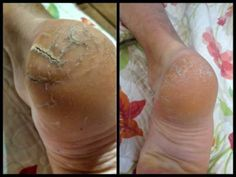 Before and after using the Seacret Salt Scrub and Foot Cream with Tea Tree Oil. Wwww.seacretdirect.com/laurenpham