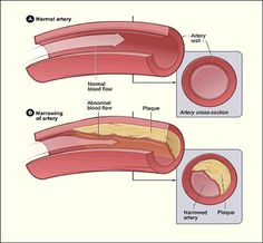 Guide for Cholesterol Facts and Prevention