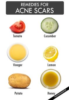 Natural home remedies for acne scars