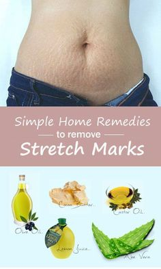 Stretch marks are the scars that occur due to contraction, expansion and stretching of the skin. Stretch marks can be commonly seen on