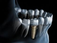 Dental implants are a permanent and comfortable replacement for one or more missing teeth that are often used in place of a fixed bridge. http://bellevue-wa-dentist.com/