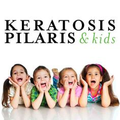 "Keratosis Pilaris (""chicken skin"" little red bumps on the back of arms and legs) & Kids"
