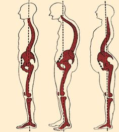 Wonderful Scoliosis Tips And Techniques For scoliosis exercises muscles Posture Exercises, Scoliosis Exercises, Middle Back Pain, Low Back Pain, Psoas Iliaque, Shoulder Problem, Alexander Technique, Psoas Release, Tight Hamstrings