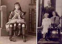 Telex: Egy háromlábú, kétpéniszű szicíliai férfi volt a 19. századi cirkuszok gigasztárja Lany, Ikon, Painting, Free, America, Painting Art, Paintings, Painted Canvas, Icons