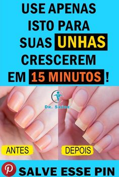 Manicure, Nails, Beauty Hacks, Beauty Tips, Health, Blog, How To Make, Tips And Tricks, Growing Nails