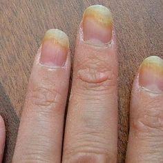 Excellent Home Remedies For Fingernail Fungus