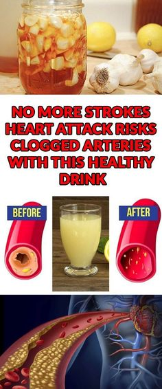 No More Strokes, Heart Attack Risks, Clogged Arteries With This Healthy Drink - Healthy Life Style Tips How To Stay Healthy, Healthy Life, Healthy Living, Heart Healthy Foods, Healthy Man, Healthy Habits, Natural Health Remedies, Natural Cures, Herbal Remedies