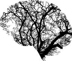 Chiropractic Art - Chiropractic Poster - Brain Art - Tree Art - Brain And Tree Art Design - Brain Posters - Tree Posters Brain Anatomy, Anatomy Art, Human Anatomy, Logo Arbol, Brain Tattoo, Brain Art, Taking Shape, Brain Activities, Neuroscience