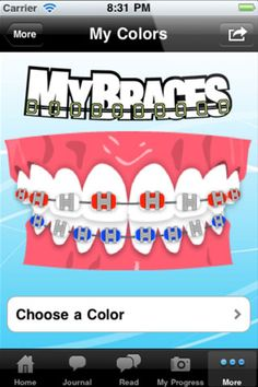 MyBraces Orthodontics Braces Apple iPhone App for iOS