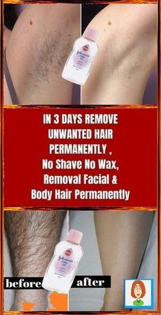 #BestFacialHairRemoval At Home Hair Removal, Hair Removal Methods, Hair Removal Cream, What To Use, Unwanted Hair, Unwanted Facial, Grow Hair, Three Days, How To Stay Healthy