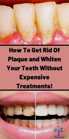 Home Remedies To Whiten Your Teeth Instantly Teeth Whitening Remedy Teeth Whit. - Home Remedies To Whiten Your Teeth Instantly Teeth Whitening Remedy Teeth Whitening At Home teeth - Teeth Whitening That Works, Teeth Whitening Remedies, Natural Teeth Whitening, Health Remedies, Home Remedies, Natural Remedies, Teeth Whiting At Home, Homemade Toothpaste, Heal Cavities