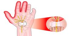 What are the symptoms of nerve compression? What are the methods of treatment applied in nerve compression? What Is Nerve Compression? Carpal Tunnel Surgery, Carpal Tunnel Relief, Carpal Tunnel Syndrome, Tennis Arm, Types Of Ovarian Cancer, Median Nerve, Wrist Pain, Natural Treatments, Sciatica