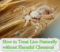 How to Treat Lice Naturally without Harmful Chemicals  Head lice are one of the most typical and annoying parasites out there and are possible for all types o