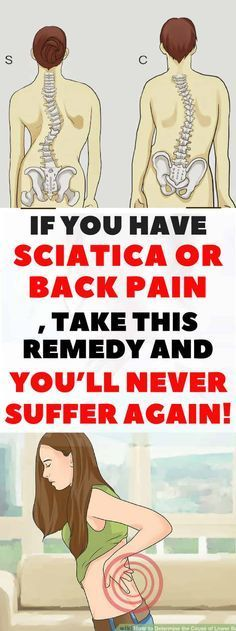 The sciatic nerve is the largest nerve in the human's body. Sciatica is the pain that is experienced in the lower back, buttocks, and legs, and it's one of the most common back problems. This pain is usually caused by some pinched or irritated sciatic ner Back Pain Remedies, Natural Headache Remedies, Sciatic Pain, Sciatic Nerve, Nerve Pain, Headache Relief, Pain Relief, Arthritis, Sciatica Symptoms
