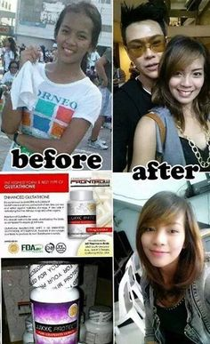 Luxxe White Enhanced Glutathione and Luxxe Protect Grapeseed Extract (Perfect Whitening Combo)  -Halal approved, FDA approved, Effective whitening supplement For orders contact +639487574995 or call (+63) (2) 738-5310 Visit our page: facebook.com/bellezaluxxe Grape Seed Extract, Best Brand, Whitening, Front Row, Anti Aging, The Cure, Wellness Products, Facebook, Health